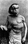 One Of Two Pictures Posted By Pittard Of Joseph Merrick The Elephant Man